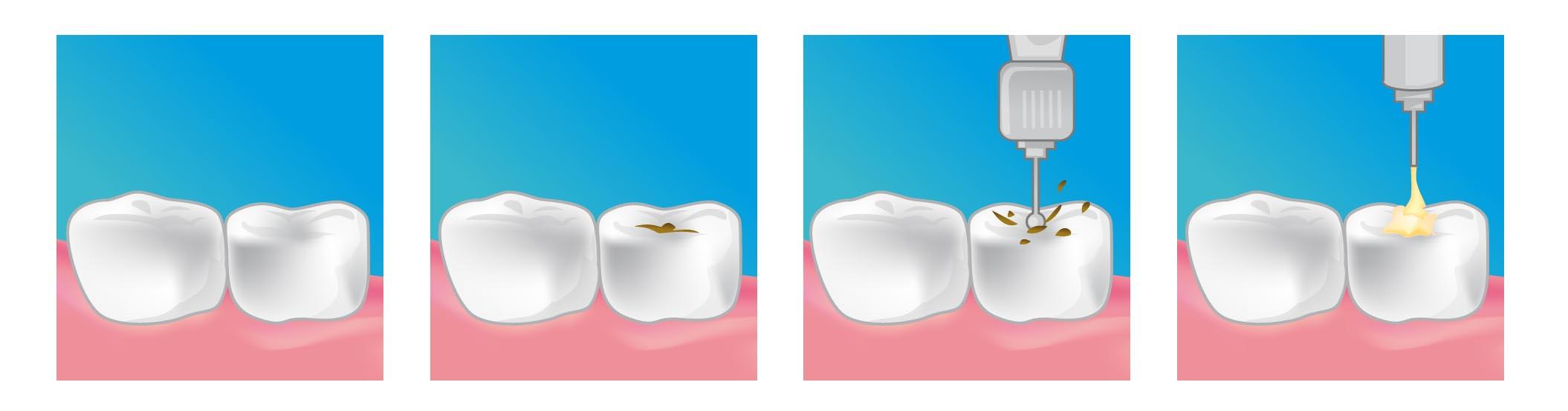 les caries neuilly sur marne 93330 dentiste selarl du. Black Bedroom Furniture Sets. Home Design Ideas